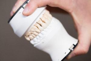 Dental Veneers Billerica