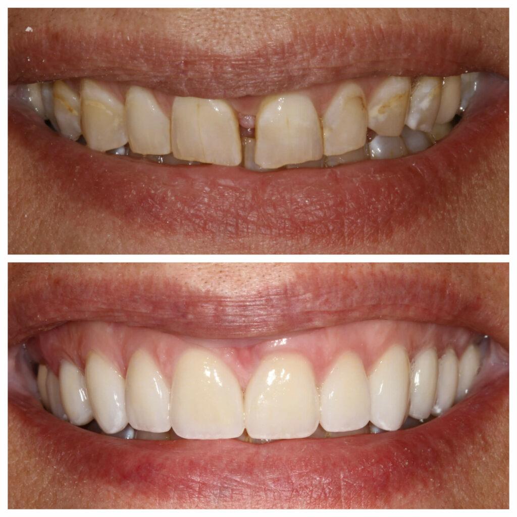 tooth gap correction